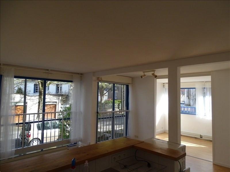 Vente appartement Nantes 160000€ - Photo 2