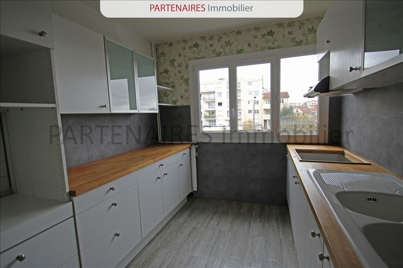 Vente appartement Le chesnay 285000€ - Photo 3